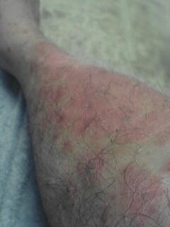 一番症状の悪い右脚の状況。真っ赤です